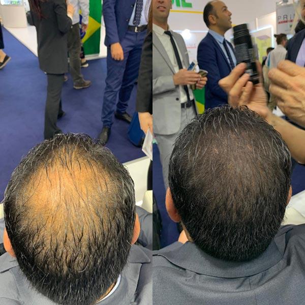 Diradamento capelli: fibre di cheratina migliori per una ...